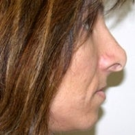 Revision Rhinoplasty before 442996