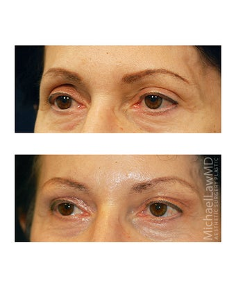 Facial Rejuvenation - Brow Lift before 395967