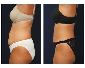 Tummy Tuck or Abdominoplasty before 283168