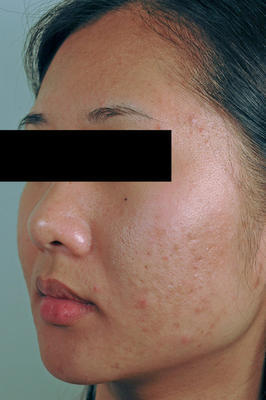 Laser Acne Scar Removal before 82972