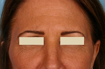 Frown lines treatment after 88694