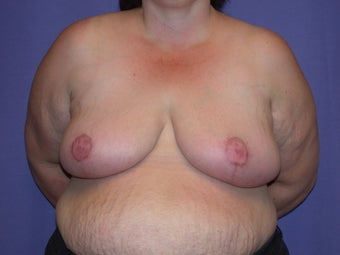 Breast reduction after 203501
