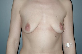 Breast lift with augmentation before 165876