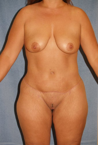 Tummy Tuck with Liposuction after 411595
