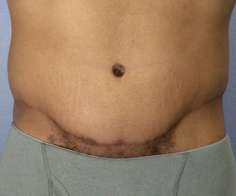 Male Body Contouring after 280189