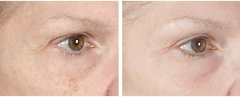 Active FX Fractional Laser Resurfacing before 253995