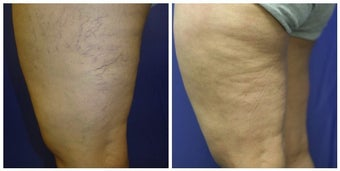 spider vein sclerotherapy with asclera before 392260