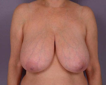 Breast Reduction before 285302