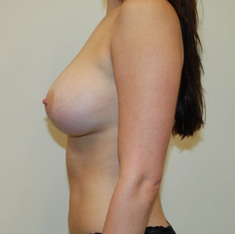 Breast Augmentation 397787