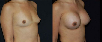 Breast Implants after 150821
