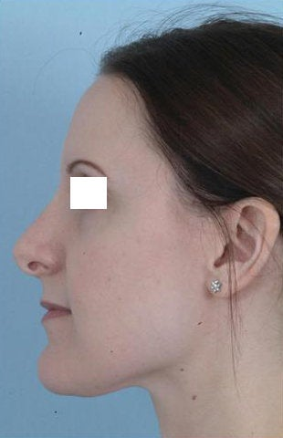 Revision Rhinoplasty  before 100950