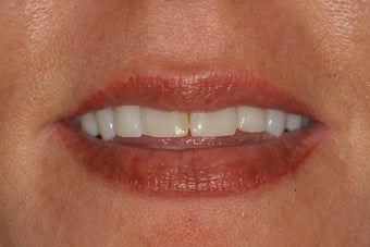 Porcelain Veneers before 213065