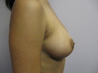 Breast Augmentation 382786