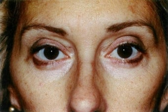 Blepharoplasty (lower eyelid surgery) after 278476