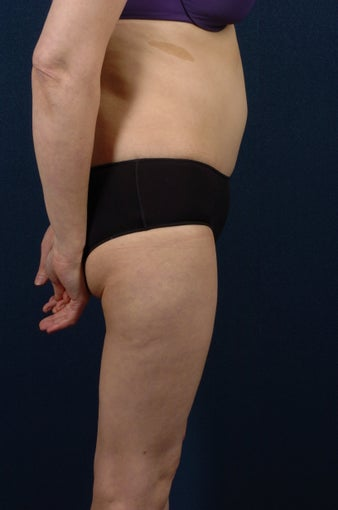 Abdominoplasty (tummy tuck) after 267668