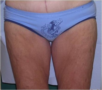 Thigh lift after 589904