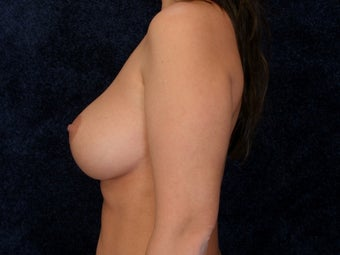 Breast Implants 322028