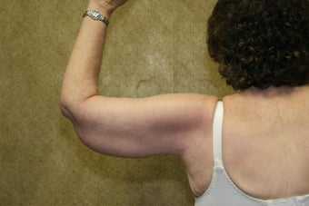Brachioplasty or arm tuck in los angeles 583676