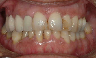 Full Porcelain Crowns before 145686