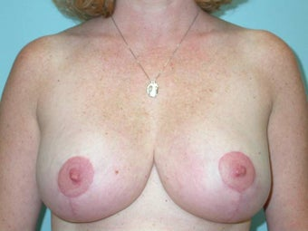 Breast Reduction after 148698