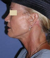 Neck Lift Surgery after 124955