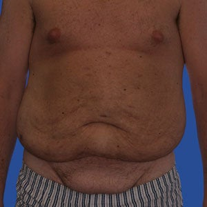 Abdominoplasty before 254382