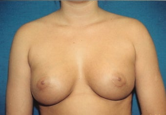 Breast Augmentation after 266922