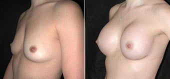 Breast Augmentation before 110019