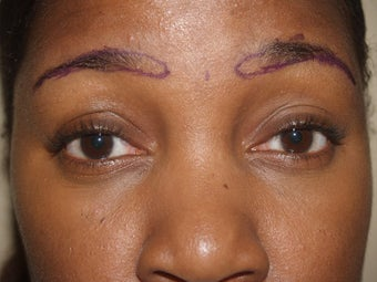 Eyebrow Transplantation before 335791