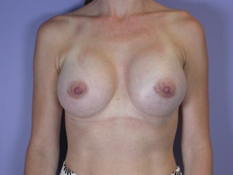 Breast Implants after 342221