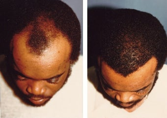 hair transplant before 369167