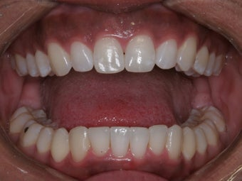 Invisalign after 372760