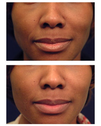 Injectable Filler before 301189