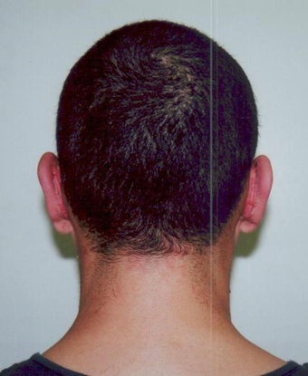 Otoplasty - Bilateral protruding ears after 393546