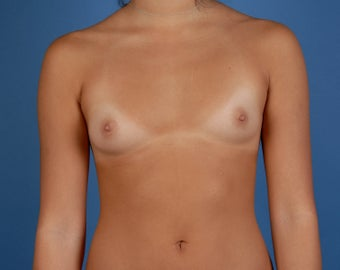 Breast Augmentation before 216693
