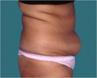 Liposuction 590650