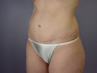 Tummy Tuck  after 306321