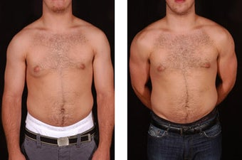 Male Breast Reduction before 106743