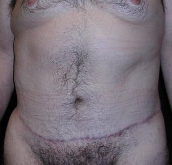 Male tummy Tuck after 578190
