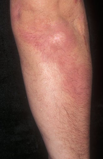 Psoriasis Treatment after 359385