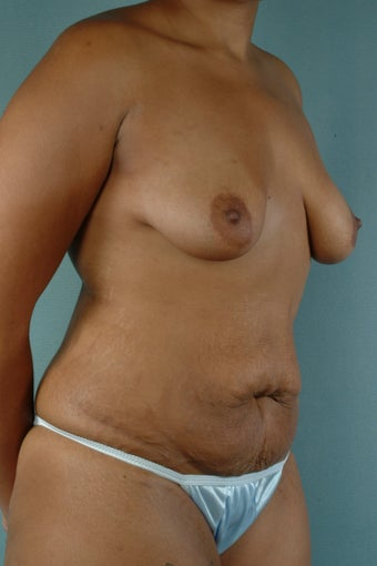 Breast Augmentation with Lift/Tummy Tuck with Liposuction before 241320
