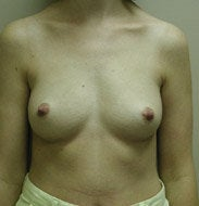 Breast Augmentation before 139554