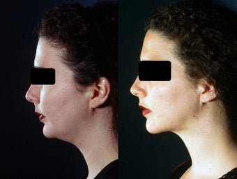 Chin and Neck  Liposuction before 449928