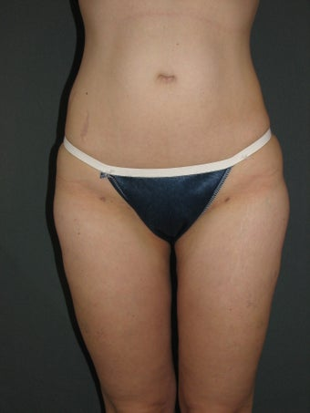 Smart Lipo of Hips, Saddle Bags, and Inner Thighs after 325110