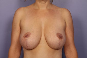 Breast Lift after 311074