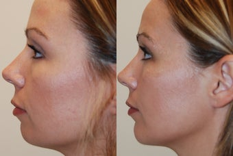Chin Implant, profile view before 95082