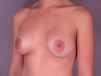 Breast Augmentation before 307437