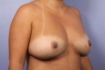 Breast Implant Revision before 622841