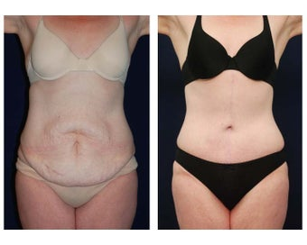 Tummy Tuck or Abdominoplasty before 283275