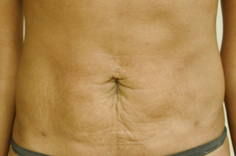 SmartLipo Abdomen after 141875